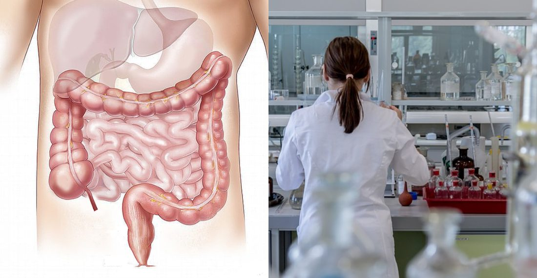 cancer de colon que lo provoca anticorpi pentru giardiază